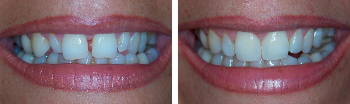 Composite cierre diastemas 1