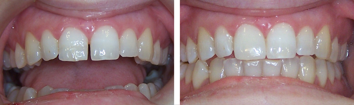 Composite cierre diastemas 3