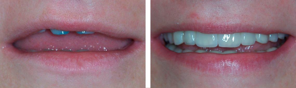 Reha implantes 1