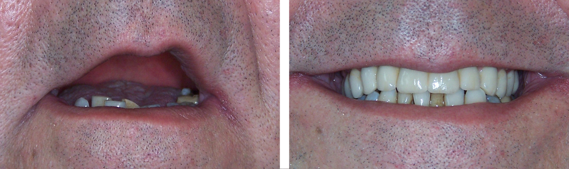 Reha implantes 2